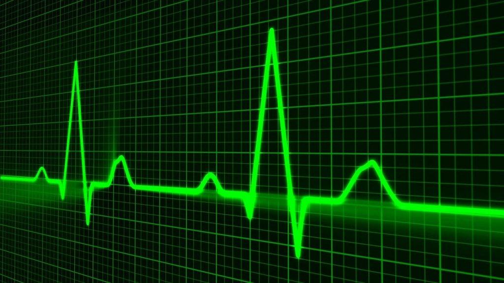 pulse trace, healthcare medicine, heartbeat